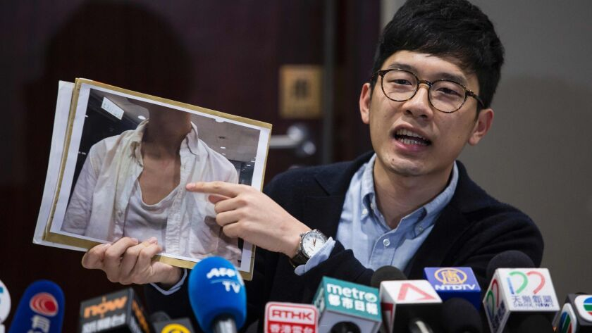 Hong Kong pro-democracy legislator Nathan Law, shown in Hong Kong on Monday, holds a photo of injuries he says he sustained afetr being attacked at Hong Kong International Airport on his return from a recent trip to Taiwan.
