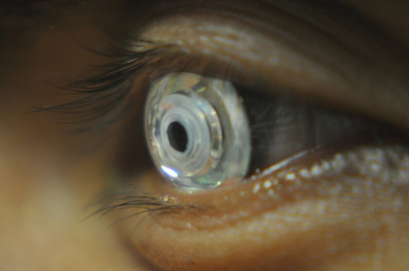 UC San Diego's Jacobs School of Engineering has been developing a telescopic contact lens that's meant to help with a variety of eye problems, including age-related macular degeneration.  Researchers say the center of the lens allows for normal, non-magnified vision. The telescope on the periphery