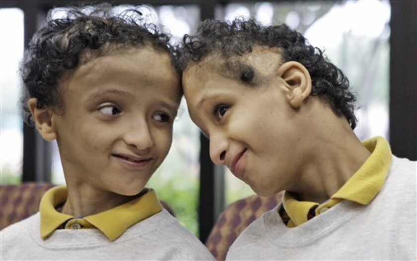 Twin brothers Mohamed Ibrahim, right, and Ahmed Ibrahim touch heads during an interview in Dallas, Texas, Wednesday, Sept. 16, 2009. The formerly conjoined Egyptian twins who were separated six years ago in Dallas have returned to Texas for checkups. The boys, born joined at the top of their heads