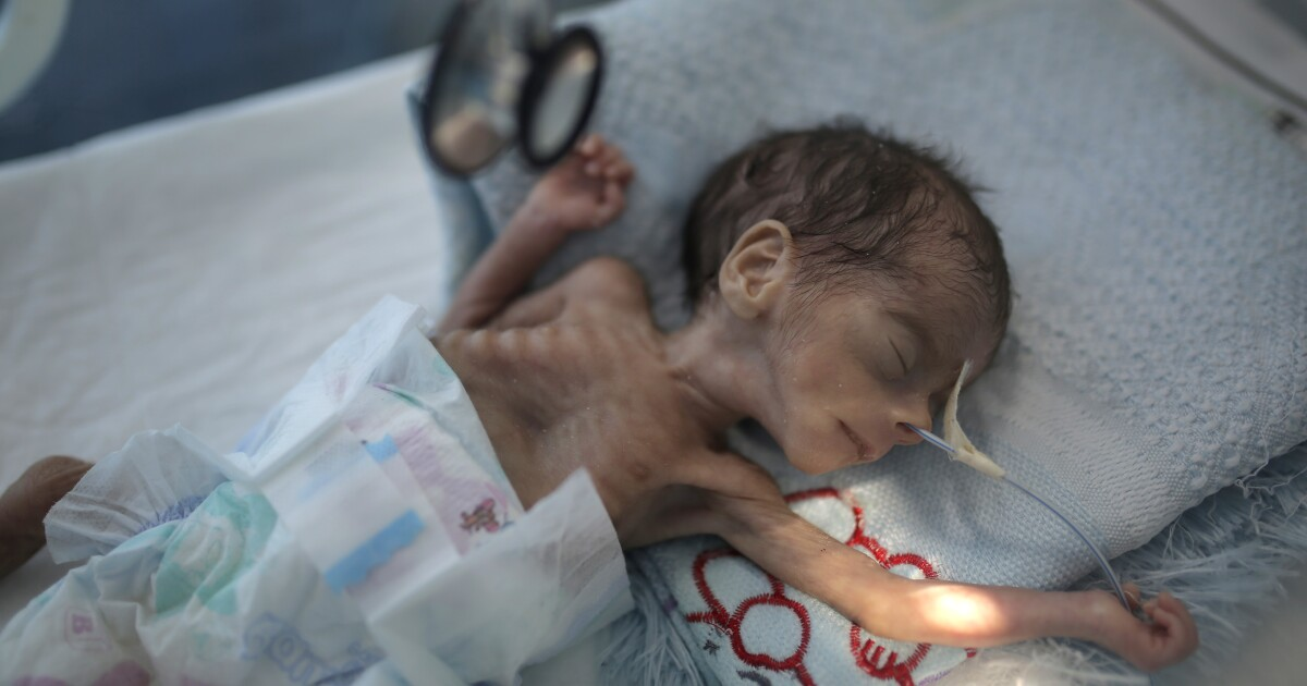 Millions of Yemeni children could starve amid pandemic, UNICEF says