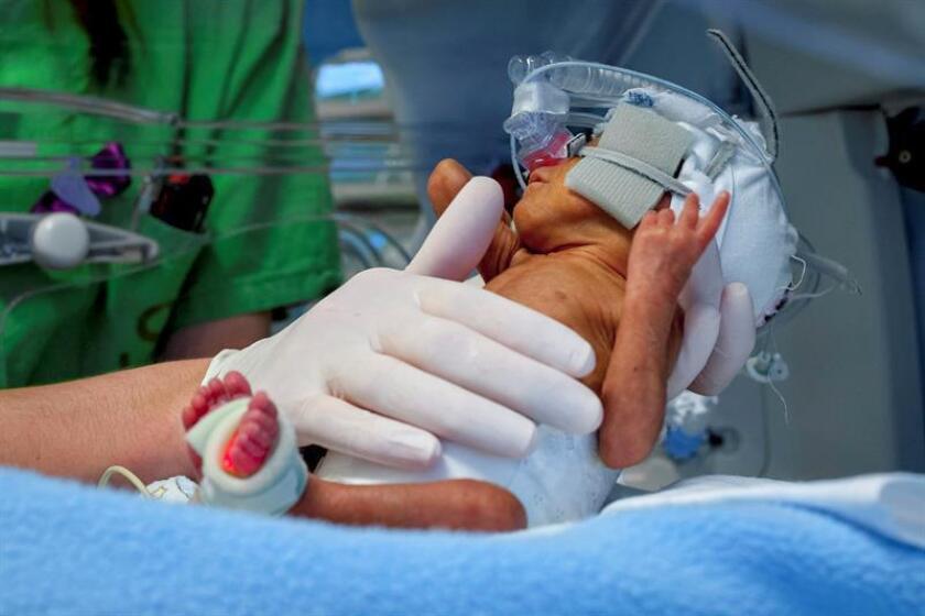 Los bebés prematuros que nacen en los países de América Latina tienen 2,5 veces mayor probabilidad de sufrir ceguera por retinopatía que los que nacen en países con altos ingresos, afirmó hoy el comisionado nacional de Protección Social en Salud del Gobierno mexicano, Antonio Chemor. EFE/ARCHIVO/PROHIBIDO SU USO EN HUNGRÍA