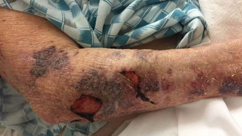 Wounds on the arms of Lori Langford Davis' 94-year-old grandmother