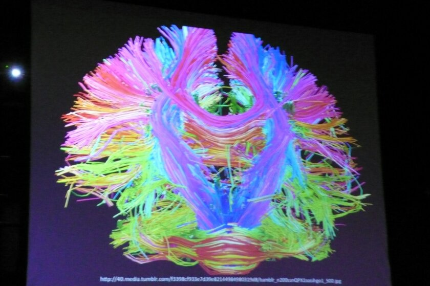 Artistic rendering of the connectivity of the brain by neuroscientist Dr. Eve Edelstein. Will Bowen
