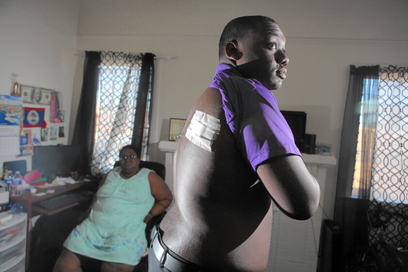 Jamar Nicholson, 15, shows the bandage covering the wound in his back where he was shot by Los Angeles police as his mother, Geraldine Nicholson, looks on.