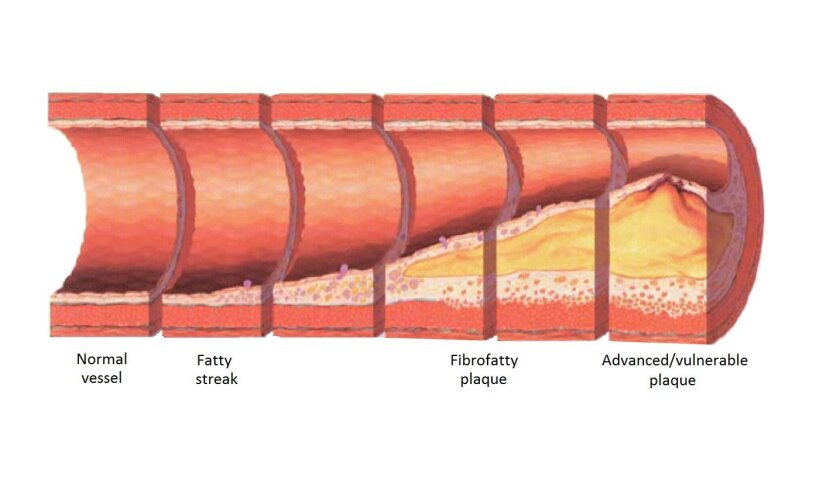 The progression of atherosclerosis as debris clogs arteries.