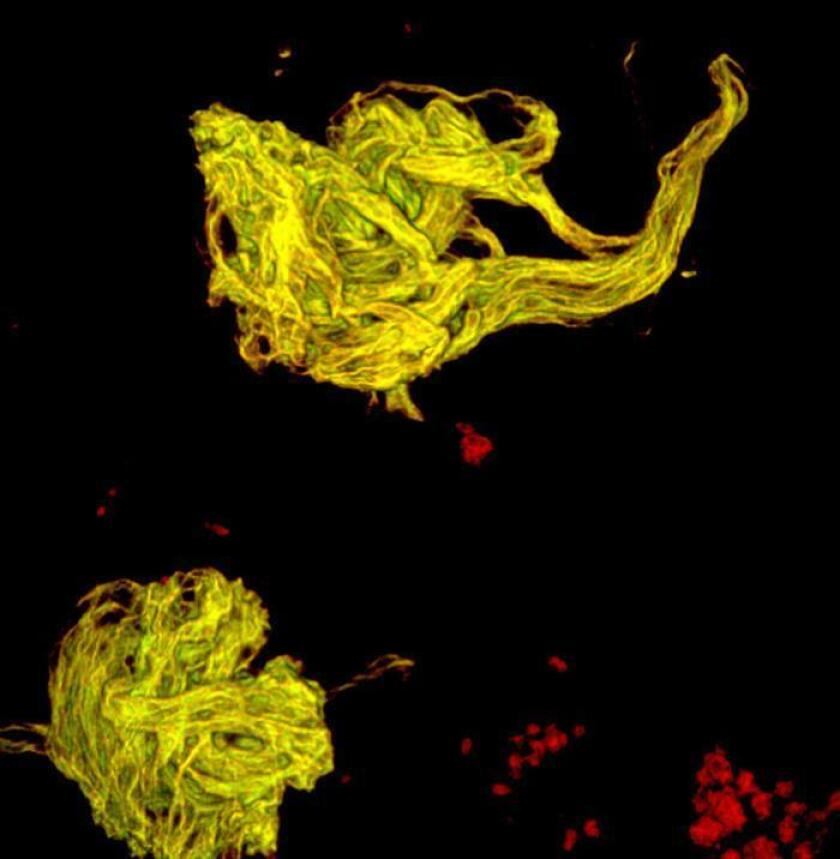 Imagen cedida hoy, jueves 22 de febrero de 2018, por el Centro de Investigación y de Estudios Avanzados del Instituto Politécnico Nacional (CINVESTAV), que muestra un fragmento del comportamiento de un cerebro humano, en Ciudad de México (México). EFE/CINVESTAV/SOLO USO EDITORIAL