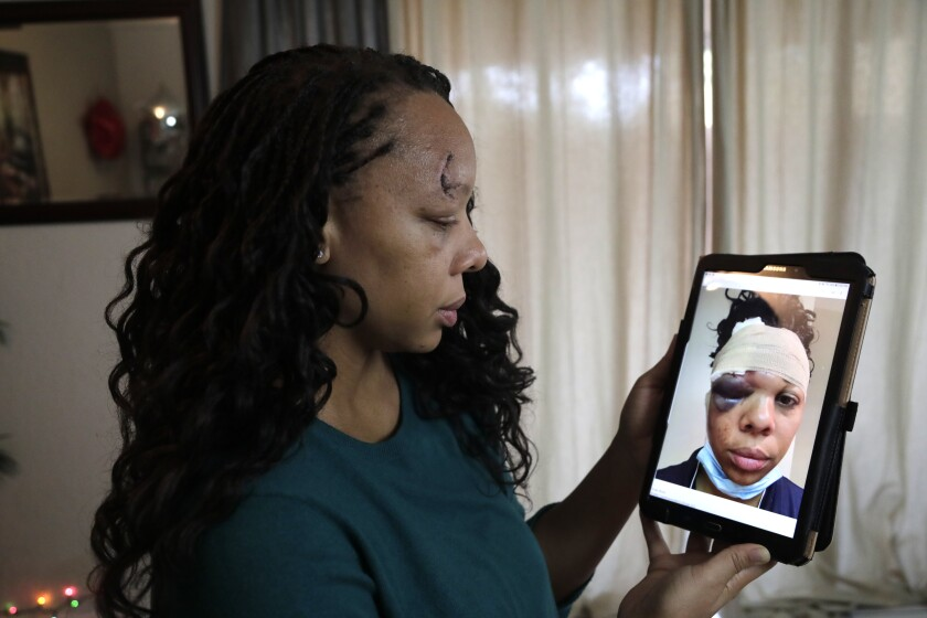 LaToya Ratlieff with a photo of herself after she was hit by a police officer's rubber bullet.