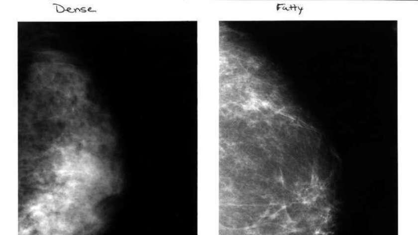 Si una mujer presenta tejido mamario mayormente denso o graso debería realizarse mamografías con mayor frecuencia, puesto que eso podría aumentar su riesgo de desarrollar cáncer de mama, señala un nuevo estudio.