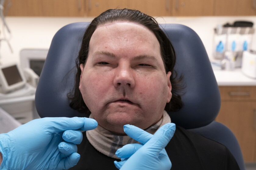 Joe DiMeo whistles softly, Monday, Jan. 25, 2021, at NYU Langone Health in New York, six months after an extremely rare double hand and face transplant. During the medical checkup, he practiced raising his eyebrows, opening and closing his eyes, puckering his mouth, giving a thumbs up and whistling. (AP Photo/Mark Lennihan)