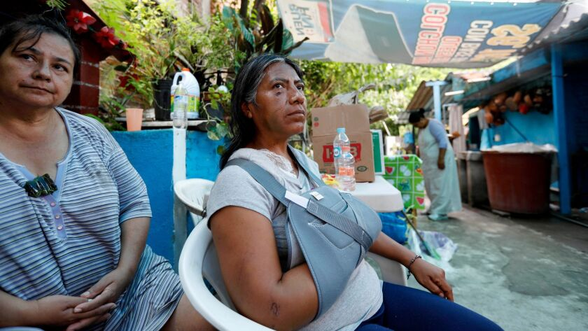 Leodegaria Comonfor Ramirez, 49, center, whose home collapsed in the recent quake, killing her daughter, has a fractured shoulder and now shares a home with her neighbors.