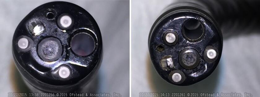 Damaged scopes