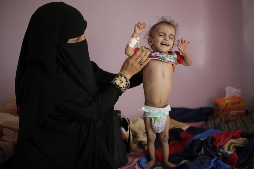 A woman holds her malnourished boy at a feeding center at Al-Sabeen hospital in Sanaa, Yemen, Saturday, Nov. 23, 2019. Fighting in Yemen has killed thousands of civilians and created the world's worst humanitarian crisis, leaving millions suffering from food and medical care shortages and pushing the country to the brink of famine. (AP Photo/Hani Mohammed)