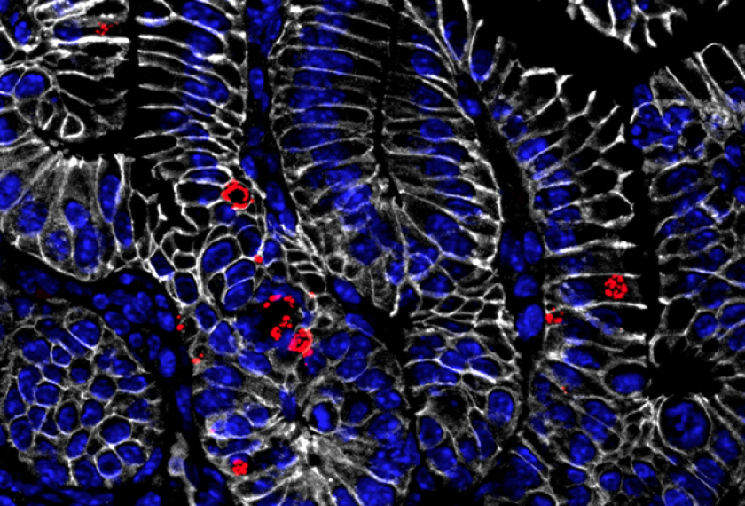 Salmonella (red) colonizing the small intestine of a mouse.