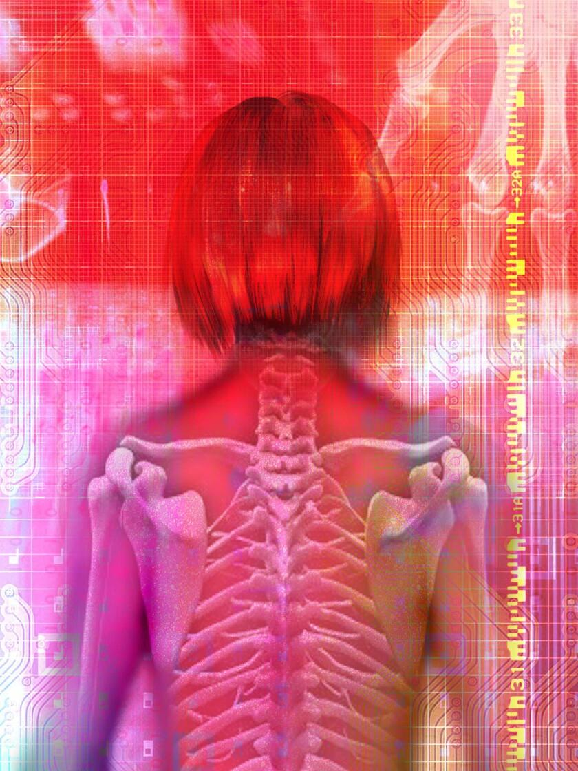 Osteoporosis illustration