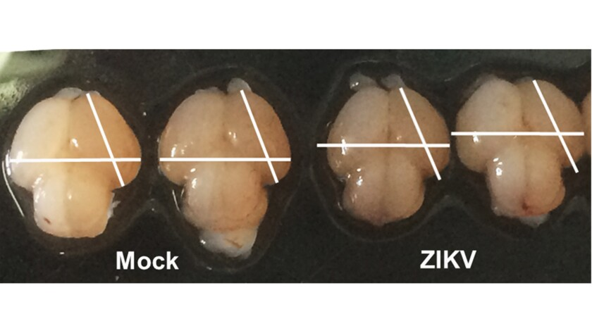 Mouse brains, with and without Zika