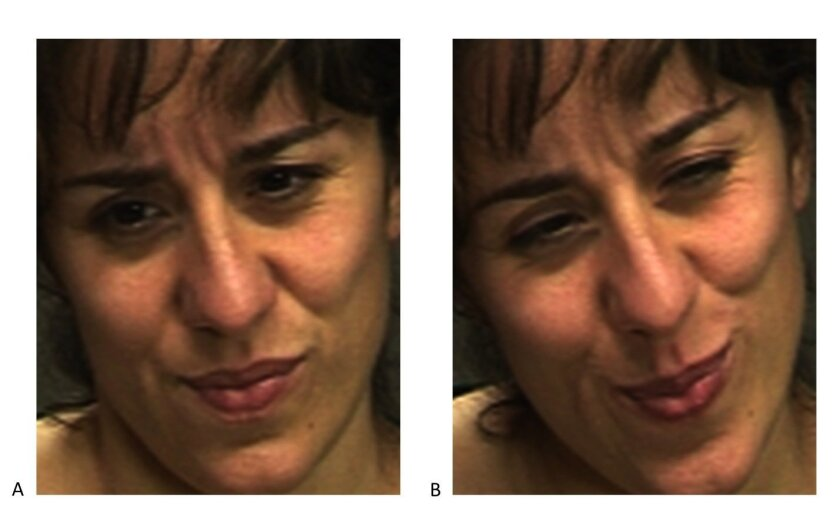 Attempts to fake expressions of pain typically involve the same facial muscles that are contracted during real pain. There is no telltale facial muscle whose presence or absence would indicate real or faked pain. The difference is in the dynamics. The real expression of pain is image B on the right