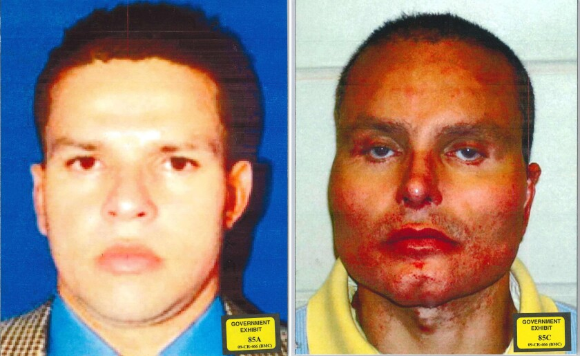 Before and after photos of Juan Carlos (Chupeta) Ramirez Abadia, A former Colombian drug lord known for an extreme plastic-surgery makeover meant to hide his identity. Abadia had undergone surgeries that altered his jawbone, cheekbones, eyes, mouth, ears and nose.