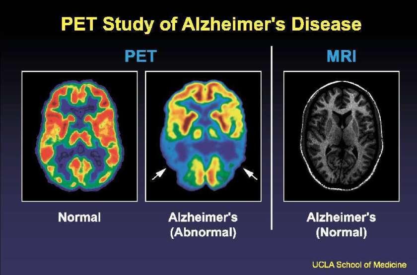 Alzheimer's disease ultrasound