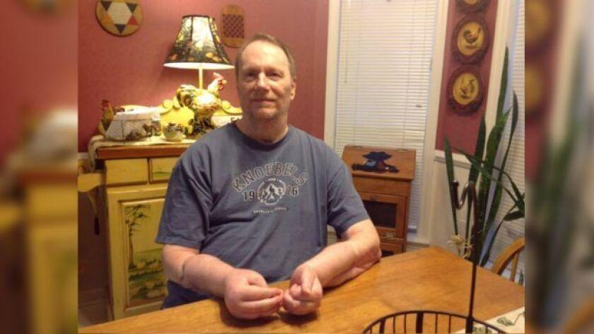 Jeff Kepner fue el primer estadounidense en recibir un trasplante de manos en 2009.