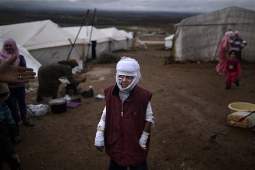 FILE - Abdullah Ahmed, 10, who suffered burns in a Syrian government airstrike and fled his home with his family, stands outside their tent at a camp for displaced Syrians in the village of Atmeh, Syria, Dec. 11, 2012. This image was one in a series of 20 by AP photographers that won the 2013 Pulit