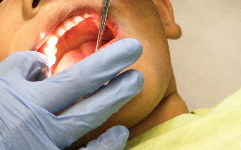 A boy gets cavities filled at a free health clinic in Los Angeles in 2012.