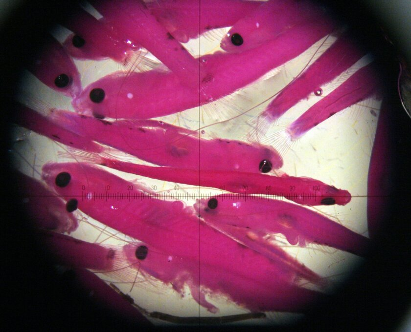 FILE - In this July 25, 2005, file photo, tiny fish caught in the Sacramento-San Joaquin Delta river are seen through a microscope at a California Department of Fish and Game laboratory in Stockton, Calif. California farmers struggling with drought say a U.S. Supreme Court decision issued Monday, J