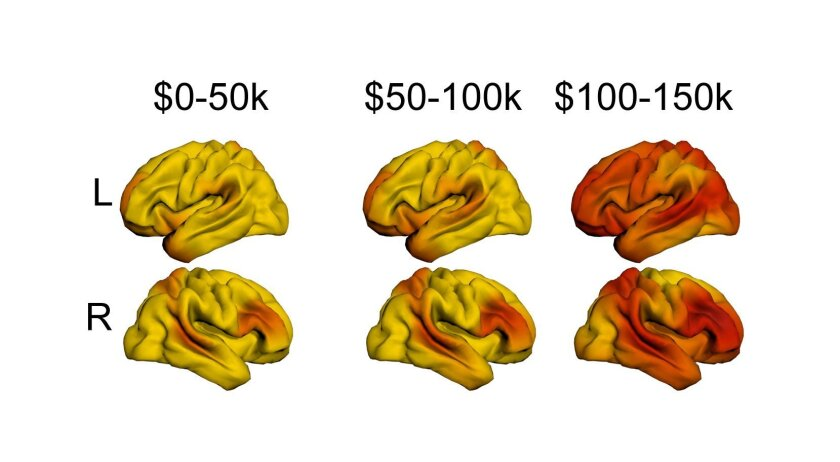How family income relates to size of brain cortex surface. Lighter colors indicate greater growth between income brackets. The $0 to $50,000 annual income bracket is the lightest, indicating that brain growth is highest when incomes rise from zero to $50,000. Higher income levels show darker colors