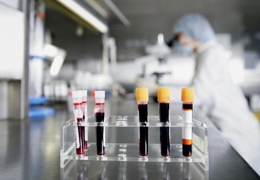 Blood samples in test tubes