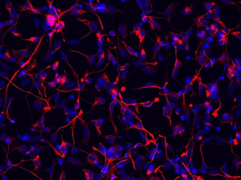 Neural stem cells generated from parthenogenetic stem cells