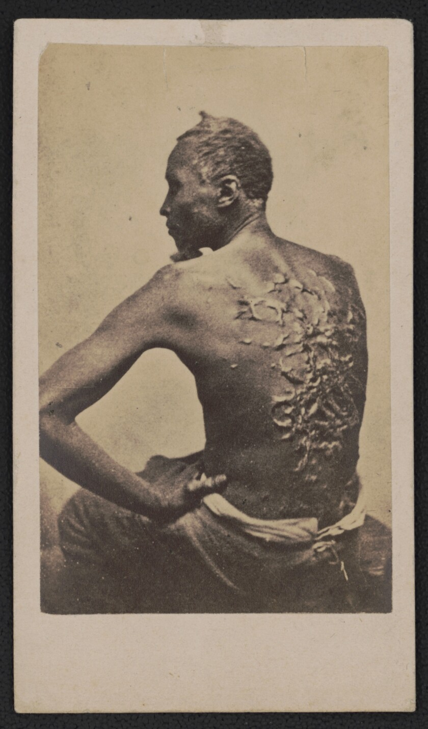 """Escaped slave Gordon, also known as """"Whipped Peter,"""" showing his scarred back at a medical examinati"""