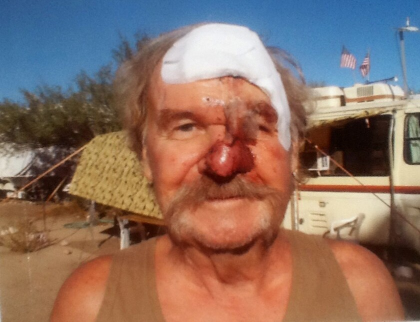 Navy veteran Edward Laird waited two years trying to get an appointment at the VA hospital in Phoenix after a biopsy was ordered for two blemishes on his nose. They turned out to be cancerous, and half his nose had to be cut away.