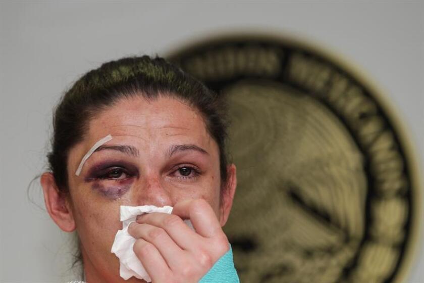 La exvelocista y ahora senadora mexicana Ana Guevara muestra las lesiones ocasionadas por un grupo de hombres el pasado domingo, durante una conferencia de prensa en las instalaciones del Senado de la República hoy, martes 13 de diciembre de 2016, en Ciudad de México. EFE