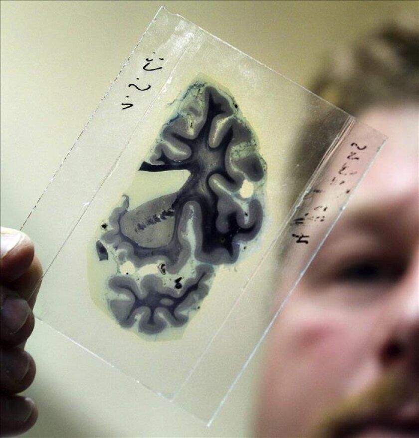 El Instituto Nacional de Salud (NIH, en inglés) anunció hoy la convocatoria de las primeras ayudas, por un total de 40 millones de dólares, del programa de investigación que pretende lograr un mapa del cerebro humano que pueda ayudar a curar enfermedades como el alzhéimer o la epilepsia. EFE/Archiv
