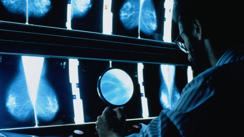 Male radiographer sat at light box studying mammograms. Ben Edwards, Stone via Getty Images