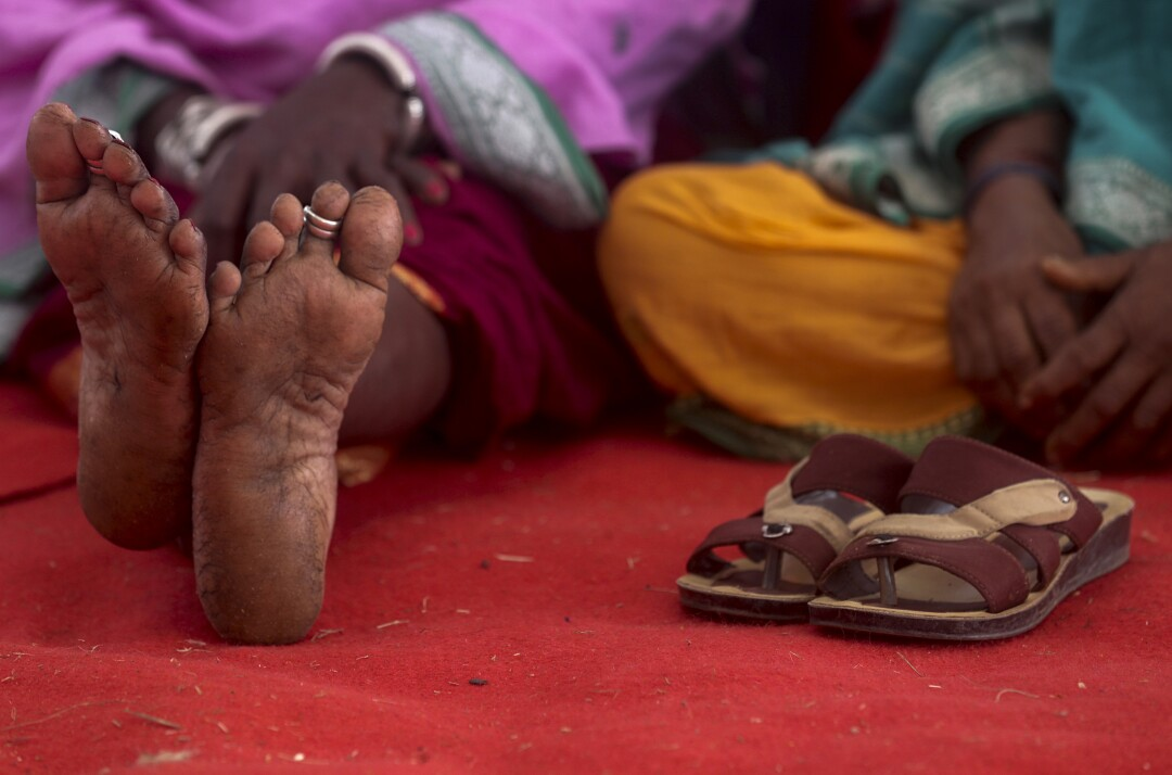 A woman rests her feet during a farmers' rally in Mumbai, India.