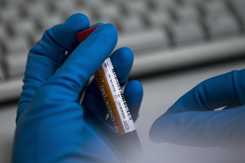 FILE - In this May 24, 2016 file photo an employee of the Russia's national drug-testing laboratory holds a vial in Moscow, Russia. Russia is accused of manipulating an archive of doping data from a laboratory in Moscow, which was meant to be a peace offering to the World Anti-Doping Agency to solve earlier disputes. (AP Photo/Alexander Zemlianichenko, File)