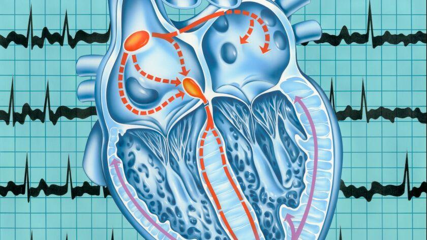 Atrial fibrillation. Artwork of a section through a human heart during atrial fibrillation, a rapid, irregular heartbeat.