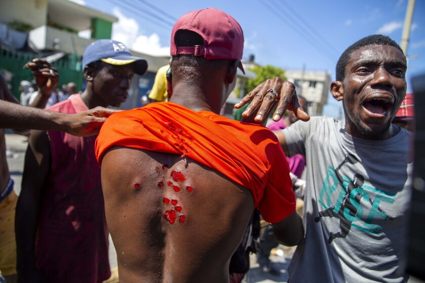 Un manifestante muestra las heridas que le causaron balas de goma disparadas por la policía para dispersar a los manifestantes que exigen la renuncia del presidente Jovenel Moïse en Puerto Príncipe, Haití, el sábado 17 de octubre de 2020. (AP Foto/Dieu Nalio Chery)