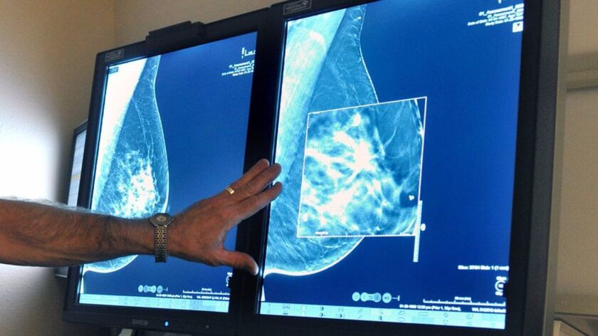 A radiologist compares an image from earlier, 2-D technology mammogram to the new 3-D Digital Breast Tomosynthesis mammography in 2012.