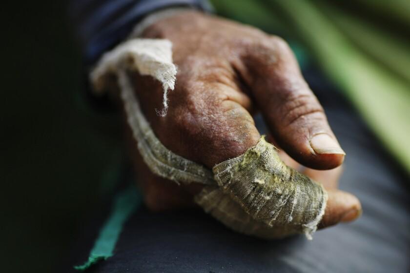 En esta imagen, tomada el 6 de enero de 2016, vendas de gasa cubren los dedos de un recolector de coca en la región montañosa de Antioquia, en Colombia. Los trabajadores cubren sus manos con vendas para evitar ampollas mientras recogen hoja de coca. (AP Foto/Rodrigo Abd)