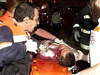 Medics tend to an Israeli.