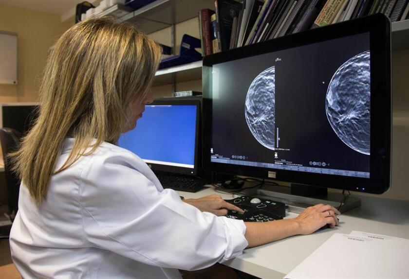 Las muertes de pacientes con cáncer de seno disminuyeron 12% en 2012 en relación con el año 2000, debido tanto a mejoras técnicas de mamografía como a desarrollos de medicinas, informó un reporte dado a conocer hoy. EFE/ARCHIVO