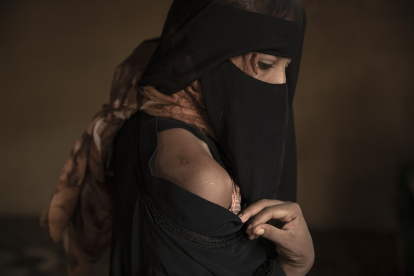 """In this July 21, 2019 photo, Ethiopian migrant Eman Idrees shows her shoulder with a wound from torture after being held and abused for eight months in a desert compound known in Arabic as a """"hosh,"""" run by an Ethiopian smuggler in Ras al-Ara, Lahj, Yemen. (AP Photo/Nariman El-Mofty)"""