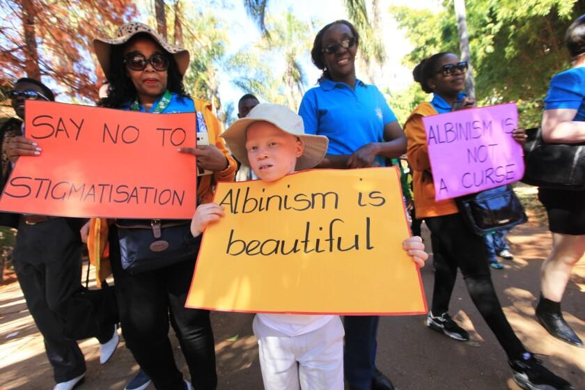Un niño albino, centro, participa en una marcha en las calles de Harare durante las actividades en el Día Internacional de Sensibilización sobre el Albinismo, en la capital de Zinbabue, el sábado 18 de junio de 2016. (AP Foto/Tsvangirayi Mukwazhi)