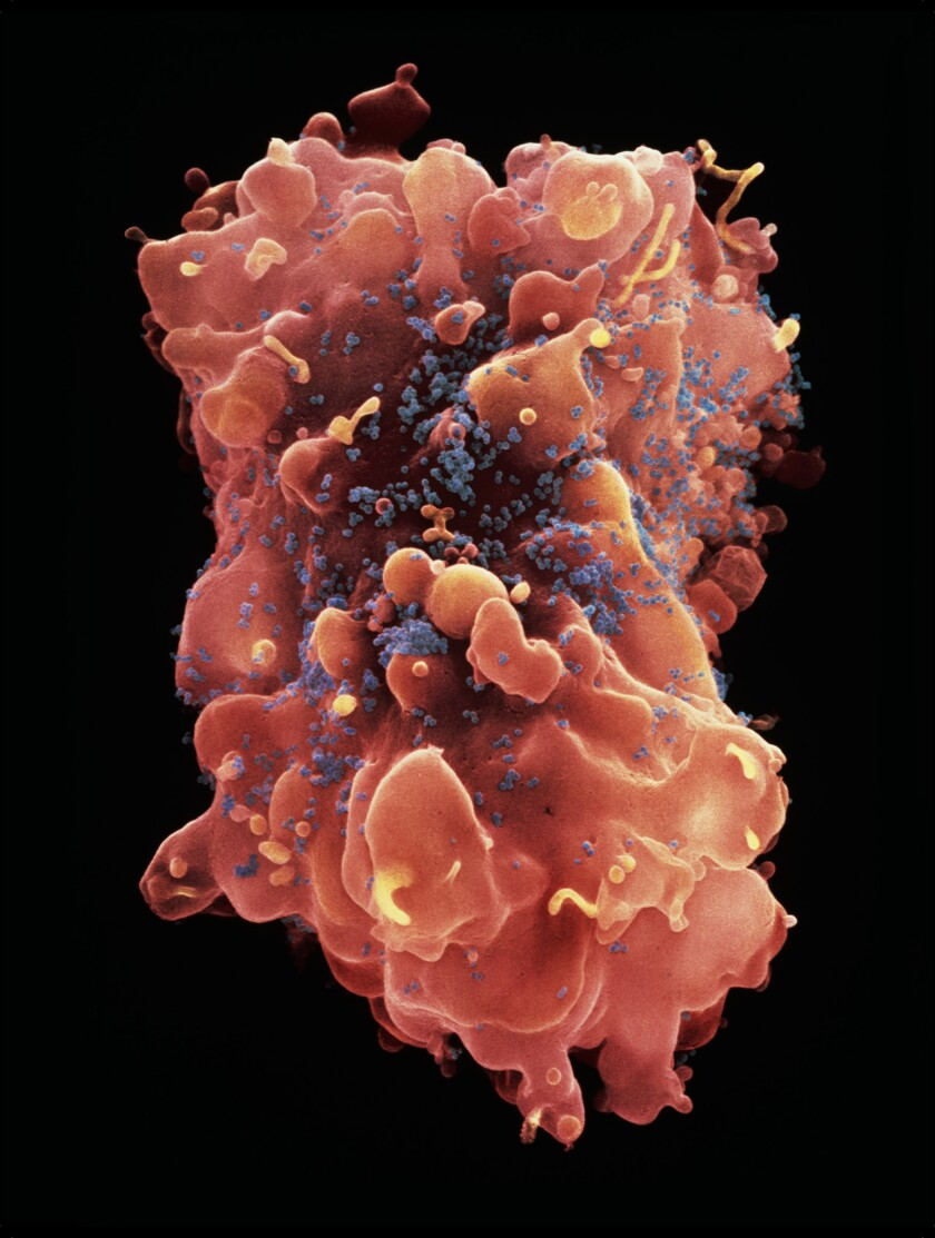 """A photographic print called """"HIV Virus on the Surface of a White Blood Cell."""""""