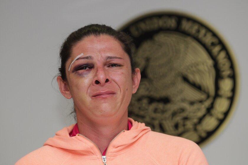 La exvelocista y ahora senadora mexicana Ana Guevara muestra las lesiones que le ocasionaron un grupo de hombres, en una conferencia de prensa en el Senado de la República.