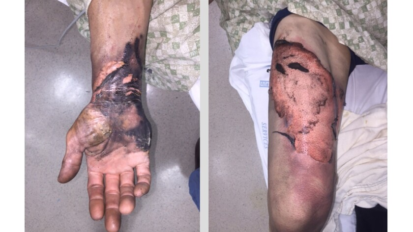 """These """"flame"""" burns, on the hand and thigh, are typical of the injuries seen after a device with a lithium-ion battery explodes in a patient's pocket."""