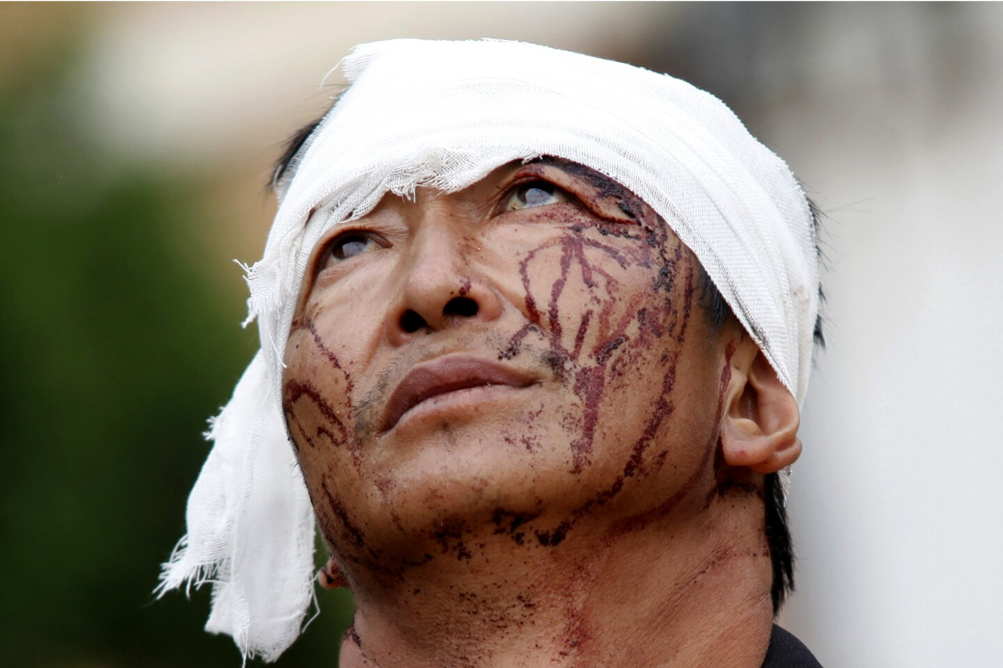 An injured man with dried blood stains on his face stands on the street of the town of Longtoushan, which is the epicenter of the earthquake.