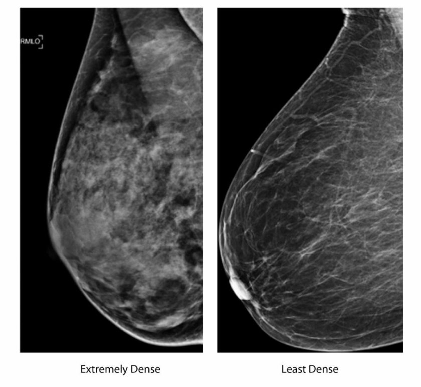 Detecting Breast Cancer Sonograms 3 D Mammography Get Closer