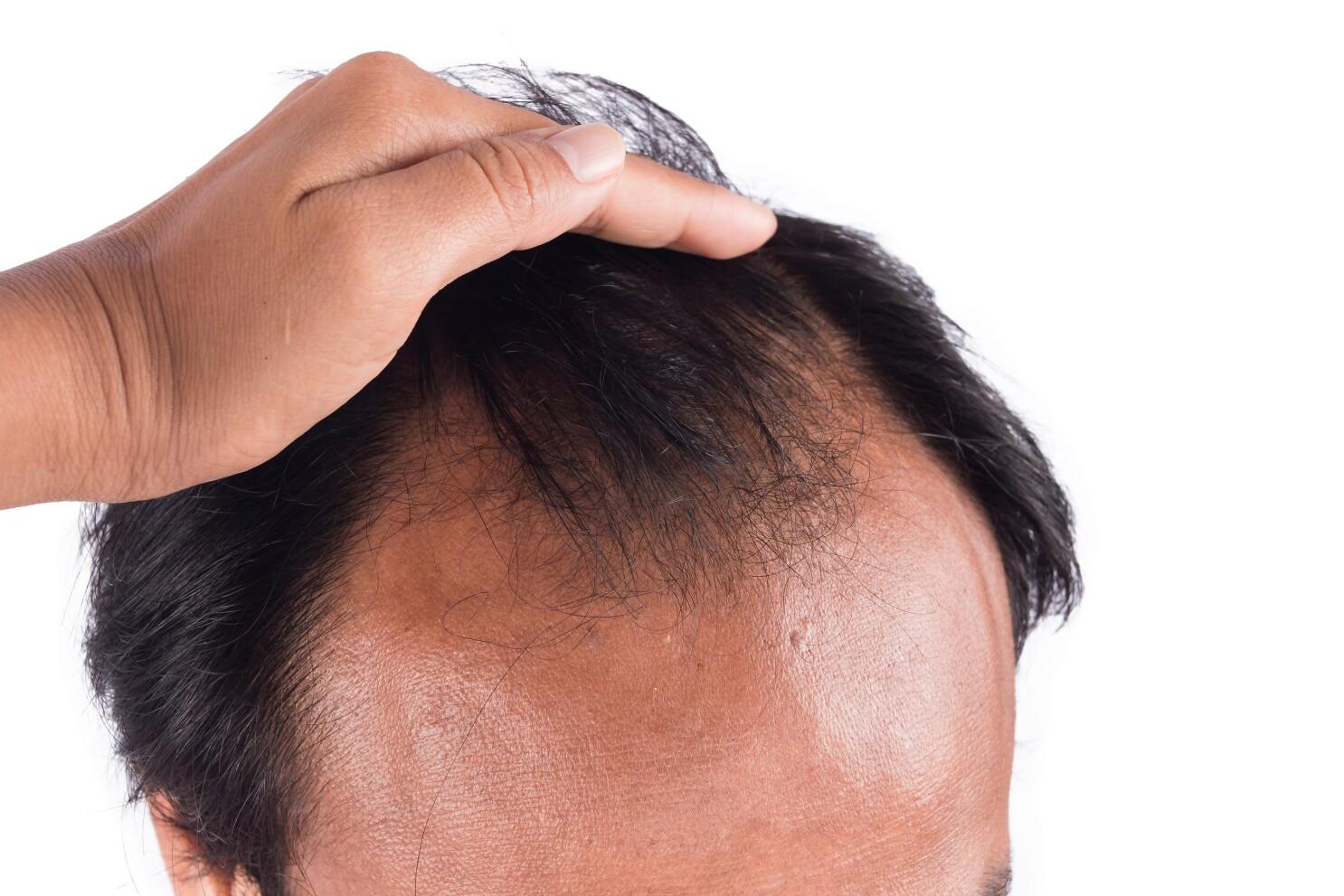 Patchy Success For Most Baldness Treatments The San Diego Union Tribune
